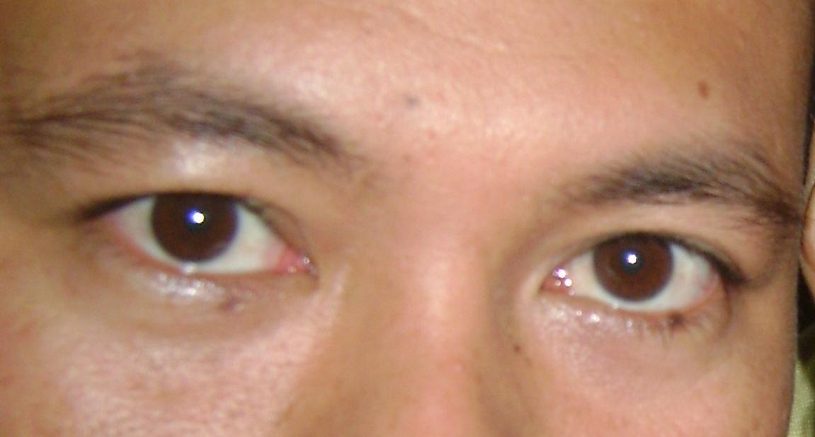 Bahaya Ngucek mata